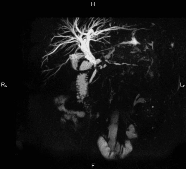 МР-холангиография снимок