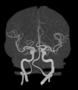 КТ ангиография головного мозга снимок
