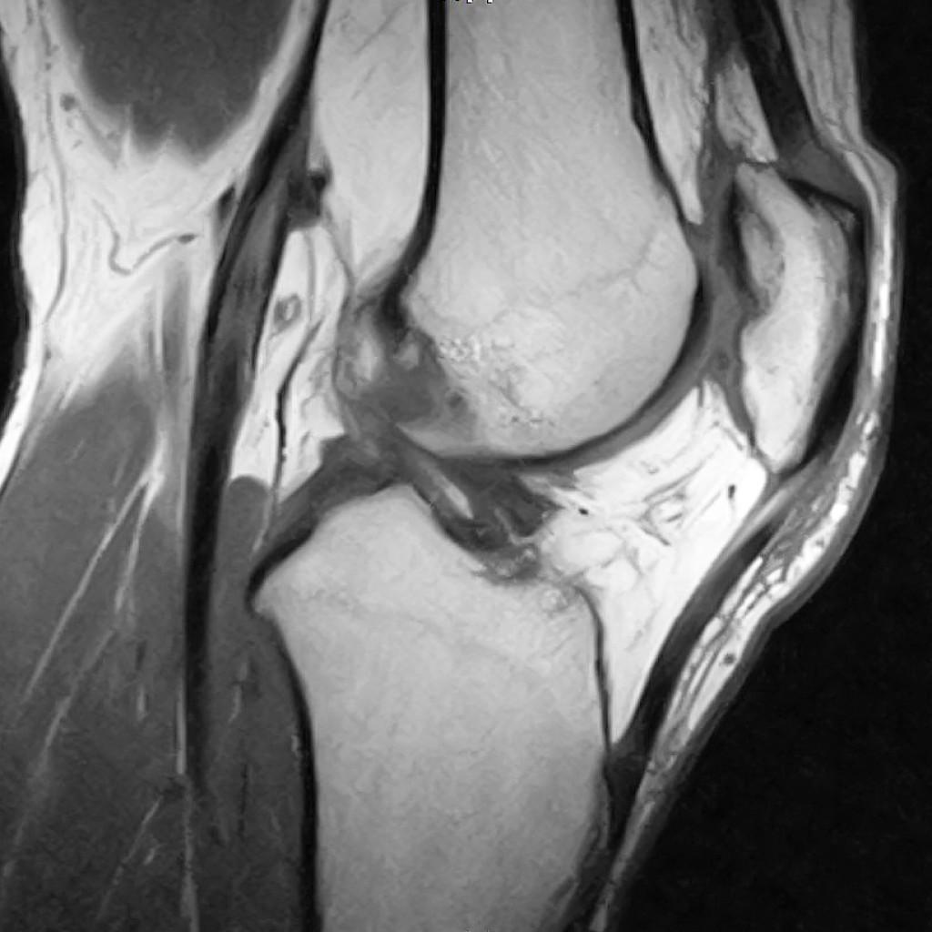 МРТ коленного сустава фото