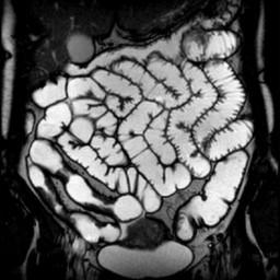 Гидро МРТ кишечника