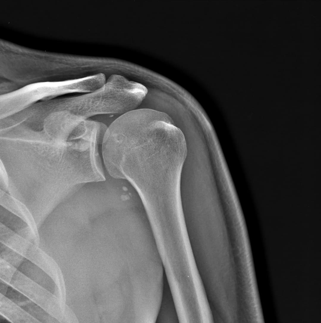 КТ плечевой кости снимок
