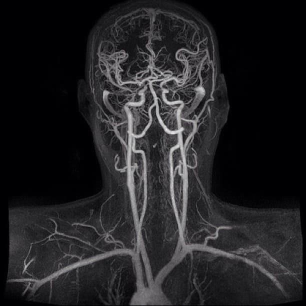 КТ ангиография шеи снимок