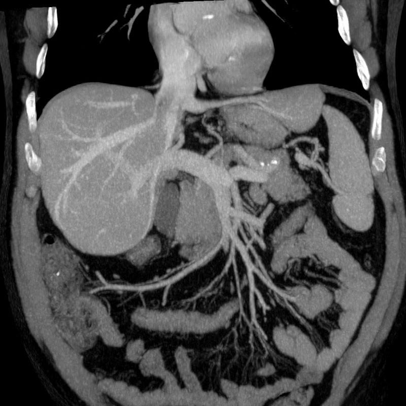МРТ брюшной полости с контрастом