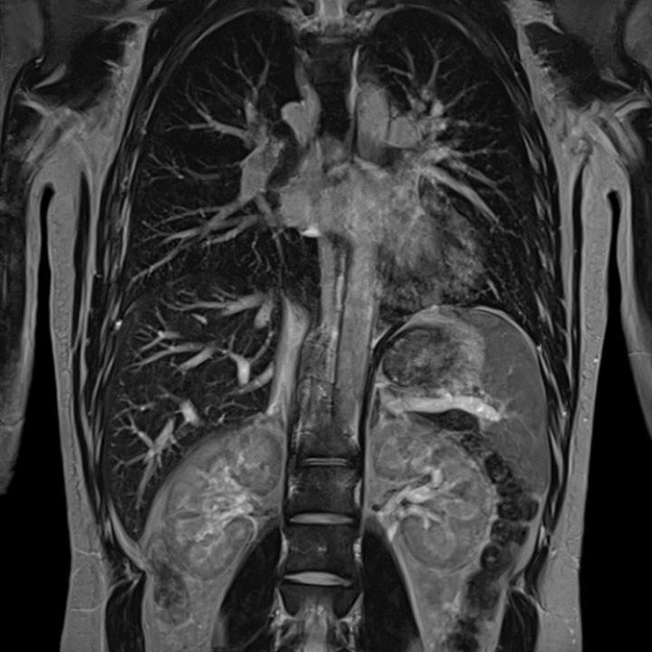 КТ грудной клетки снимок