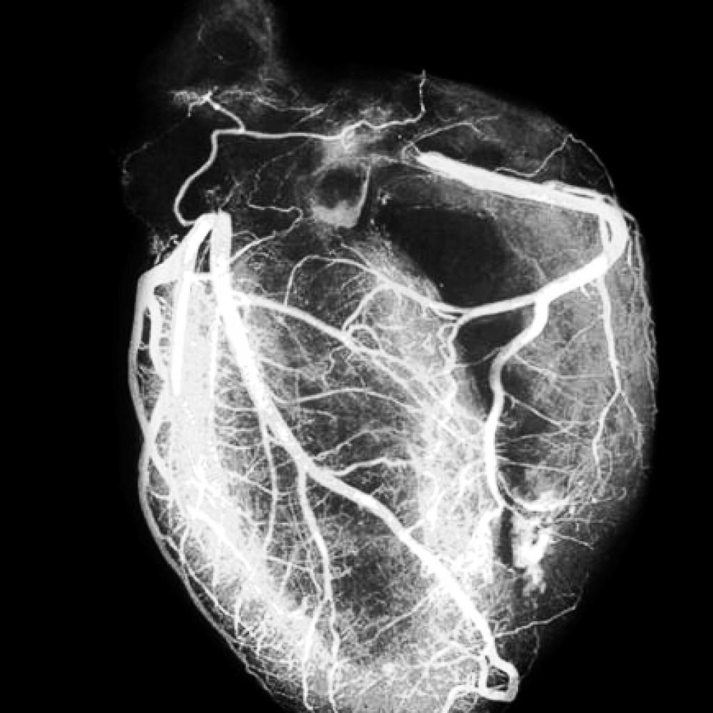МРТ сердца и коронарных сосудов