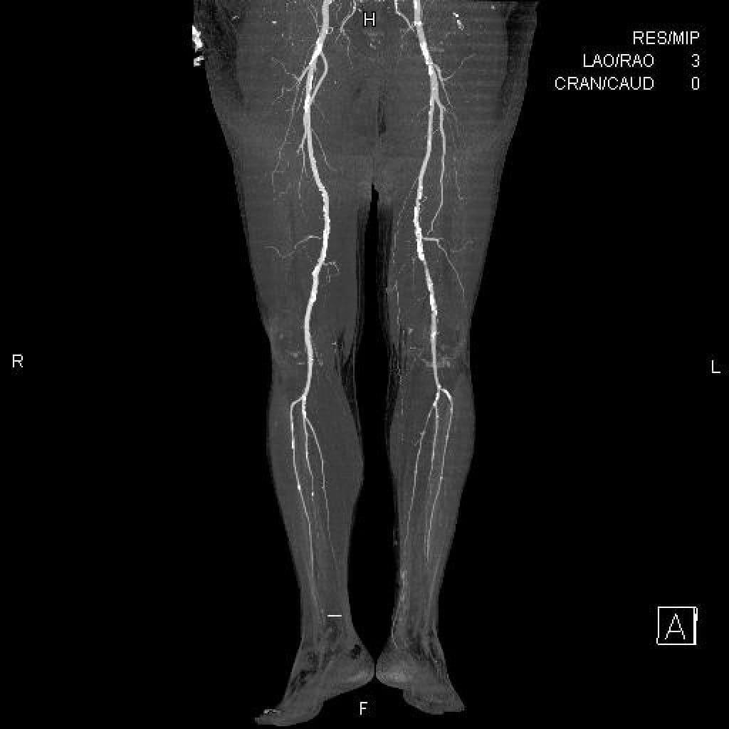КТ ангиография нижних конечностей снимок